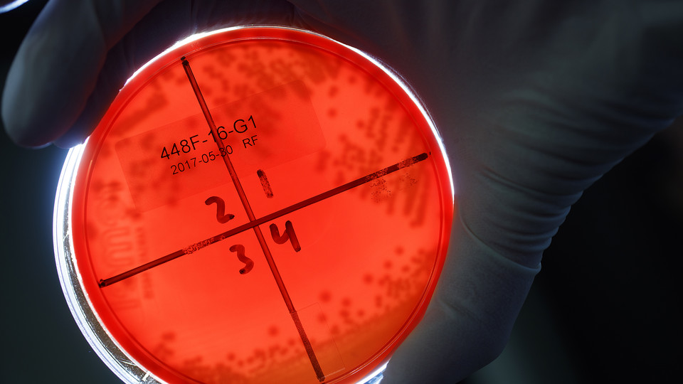 A Nebraska student examines E.coli bacteria growing in a petri dish as part of a research project led by Rodney Moxley, professor of veterinary medicine and biomedical sciences.