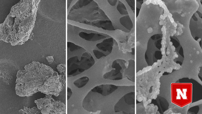Nanoparticles could enhance cholesterol-lowering foods