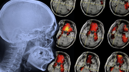 How a concussion's effects endure, long after symptoms fade